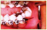 Orthodontics11